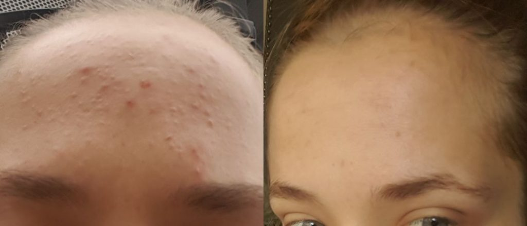 acne treatment that cleared acne at shine skin and body melbourne